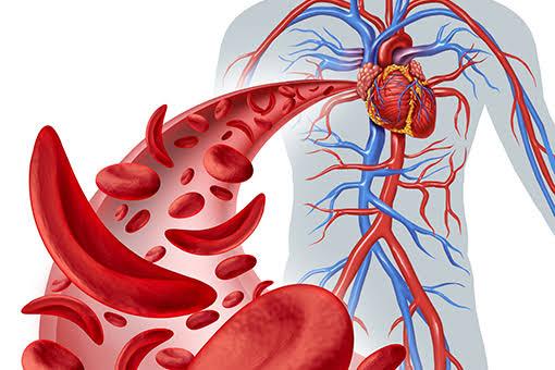 Un nouveau médicament américain contre la drépanocytose apporte de l'espoir